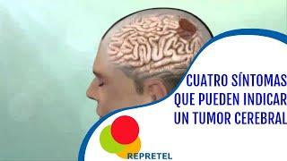 4 síntomas le podrían anunciar un tumor cerebral