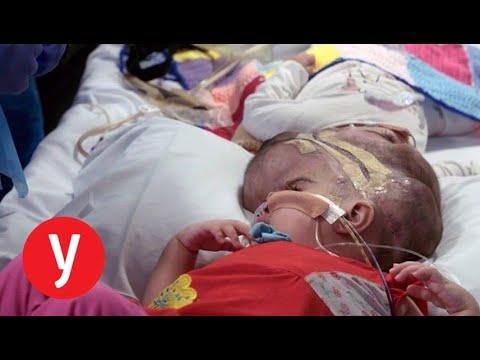 תאומים סיאמיים קיבלו חיים חדשים