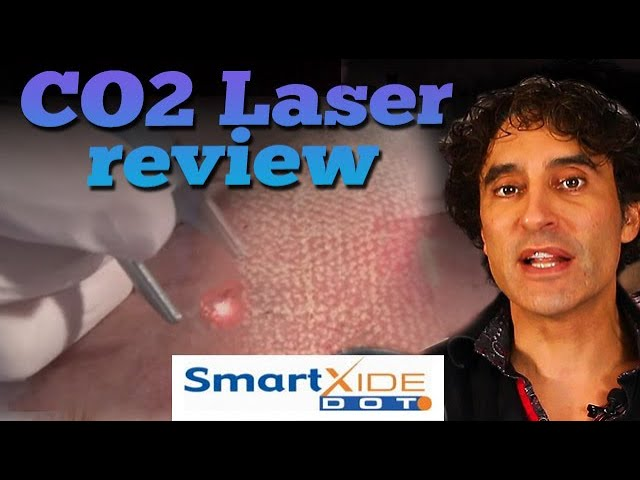 CO2 LASER REVIEW -  Glass Skin