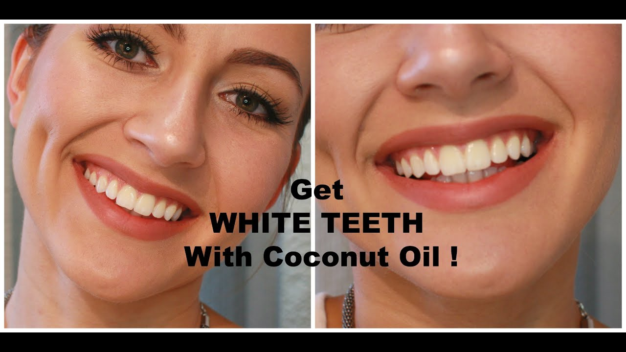 how to whiten your teeth with coconut oil youtube. Black Bedroom Furniture Sets. Home Design Ideas