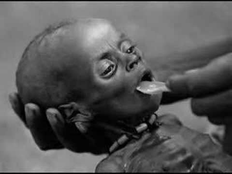 Poverty in Africa - In your Eyes - YouTube