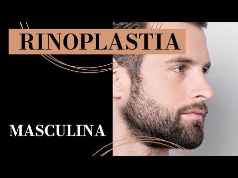 Rinoplastia Masculina -