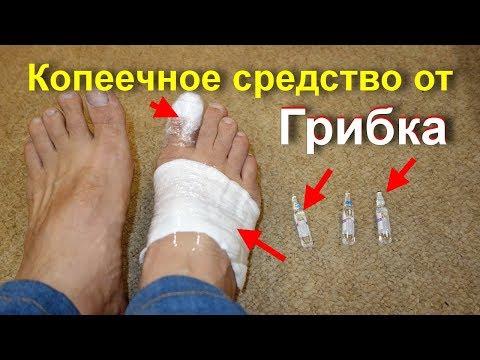 Мощнейшее копеечное средство от грибка ногтей. Вылечить грибок на ногах. Вы о таком точно не знали?