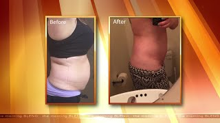 Non-Surgical Body Contouring That Will Help You Lose Weight In Las Vegas