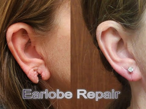 ripped-stretched-split-injured-torn-earlobe-repair-with-laser-plastic-surgery-sugar-land-houston-tx