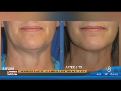 Celebrity coveted treatment available in San Diego - Image Spa MD on CBS News 8