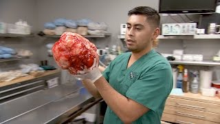 See The Whole Procedure That Led To The Removal Of A Massive Tumor From This Doberman