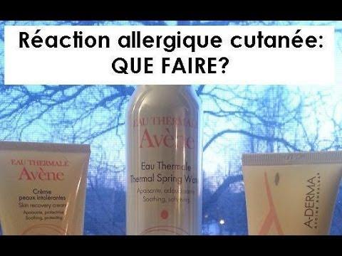 Reaction Allergique Cutanee Que Faire Youtube