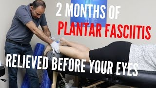 2 Months of Plantar Fasciitis Relieved Superfast (REAL TREATMENT!!!)