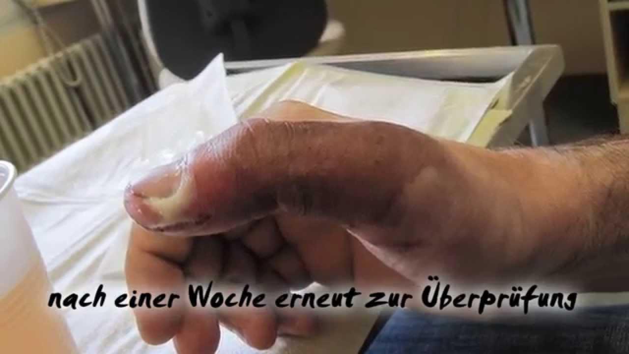 Was tun bei nagelbettentzündung