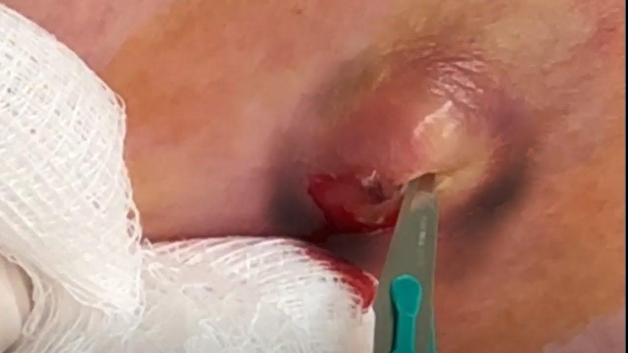 a pénisz megnagyobbodása az alappal