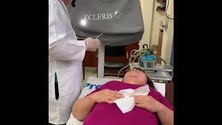 De eliminación venas nasales con láser costo de