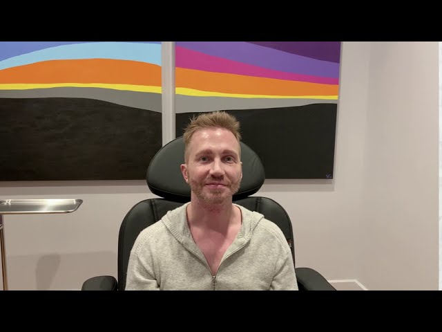 Dallas FUE Hairline and Eyebrows Hair Transplant and Beard to Beard FUE Hair Transplant  Testimonial