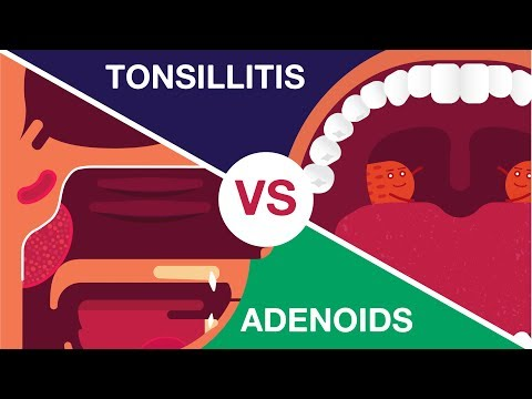 What Is Adenoids And Tonsillitis? (Complete Video)