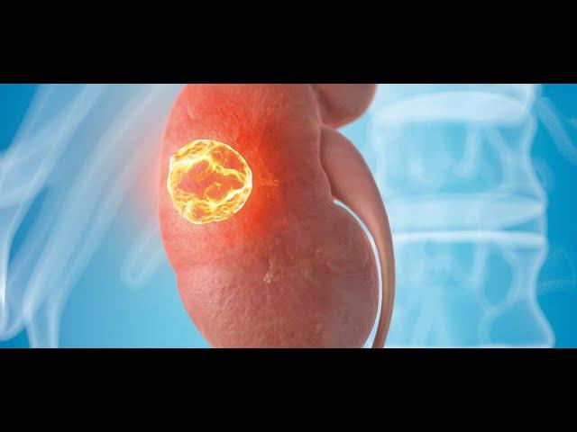 Καρκίνος νεφρού: ένας σιωπηλός εχθρός...