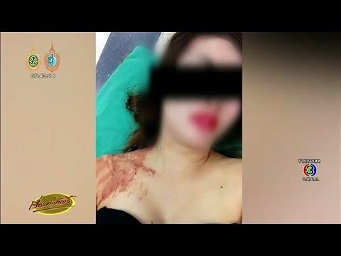 เรื่องเล่าเช้านี้ นักร้องคาเฟ่ลั่นไม่เคยเป็นชู้ใคร หลังโดน ผญบ.สาวหึงโหดใช้ปืนตบหัวเลือดอาบ