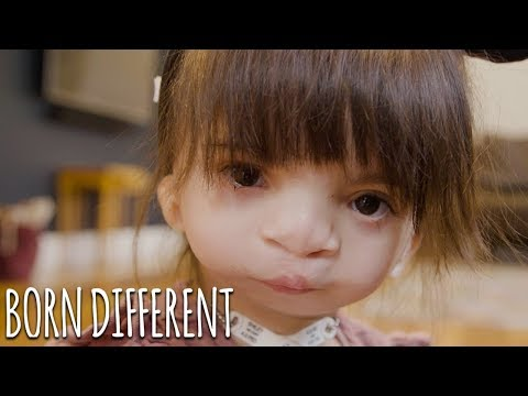 Nova: Our Girl With A Mystery Condition | BORN DIFFERENT