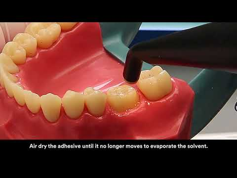 3M™ RelyX™ Ultimate Adhesive Resin Cement Application Video