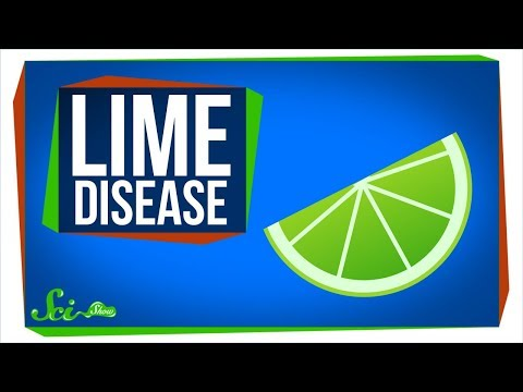Lime Disease: How a Fruity Drink Can Give You a Rash