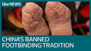 Banned practice of foot binding blighting China