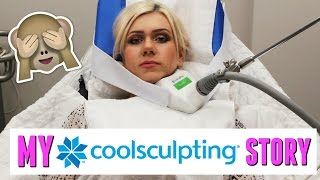 COOLSCULPTING MY CHIN: FOLLOW ME & ALL YOUR QUESTIONS ANSWERED!!