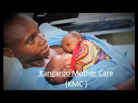 Kangaroo Mother Care -KMC