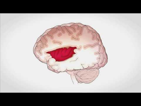 La relación del cerebro y el corazón | Luciano Sposato