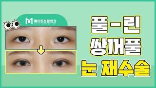 눈재수술병원 풀린 쌍꺼풀 개선 방법은?