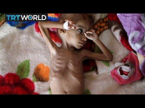 The War In Yemen: Millions in Yemen suffering from starvation