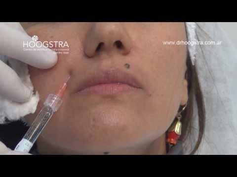 Relleno de Surcos Nasolabiales y Labiomentoneanos (13015)