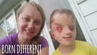 My Incredible Son With No Eyes | BORN DIFFERENT