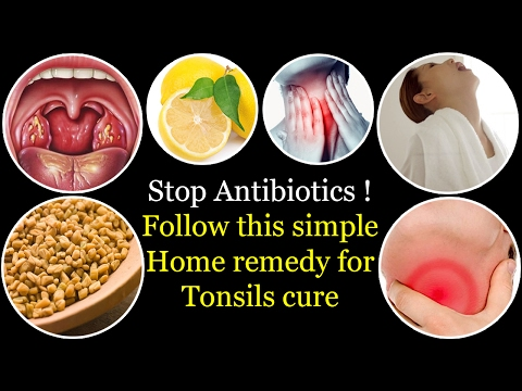 how to get rid of tonsillitis without antibiotics