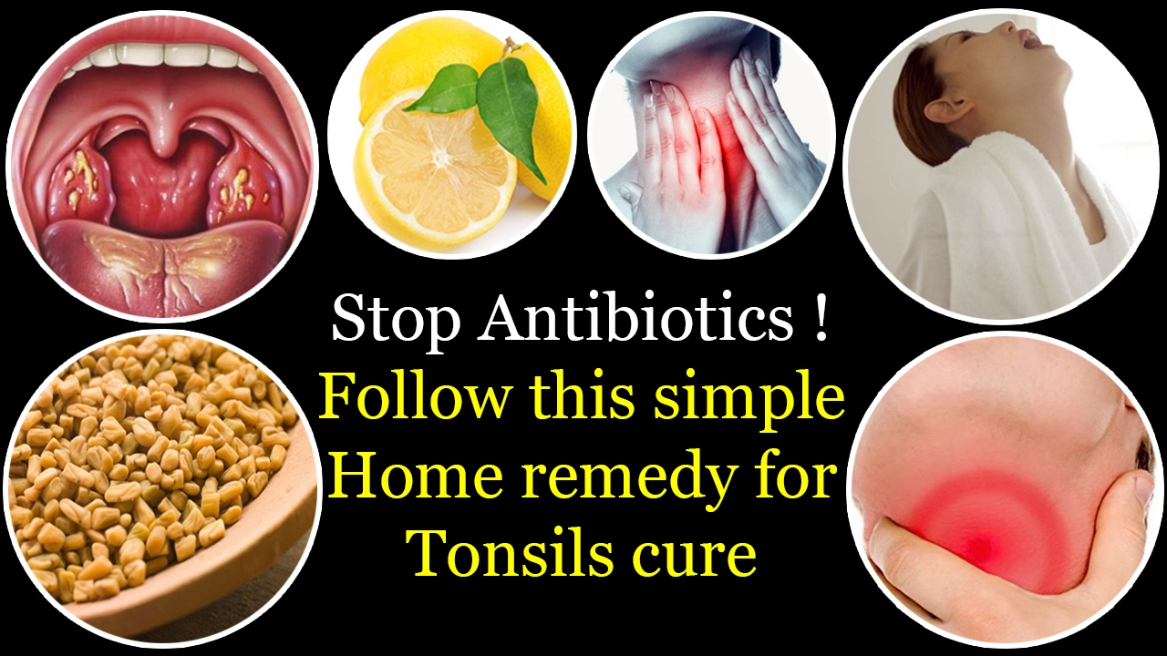 Home Remedies To Treat Swollen Tonsils Urban Home Interior