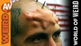 World of Weird - Skull Implants