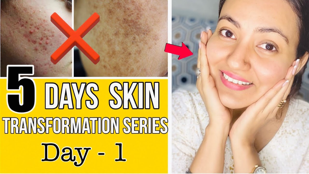 5 DAYS SKIN TRANSFORMATION CHALLENGE : Transformation To a Healthy Glowing & Flawless Skin