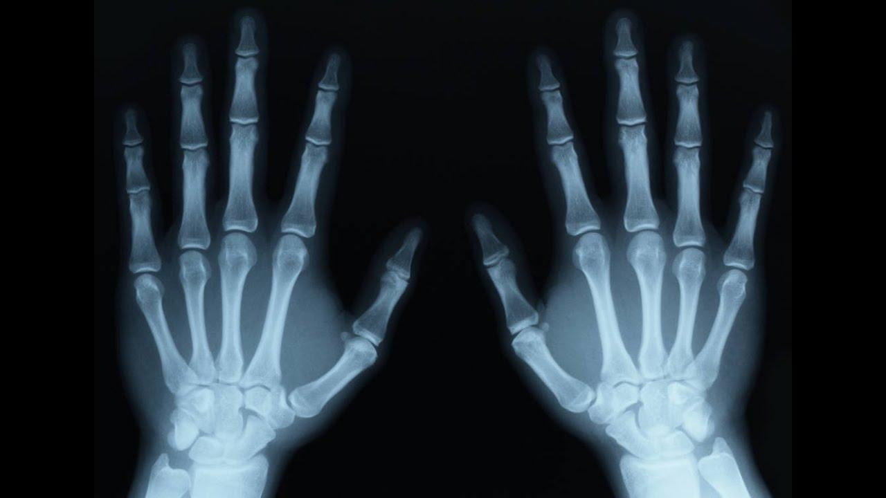نتيجة بحث الصور عن الأشعة السينية
