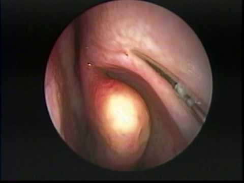 Endoscopic Treatment of Allergic  Fungal Maxillary Sinusitis