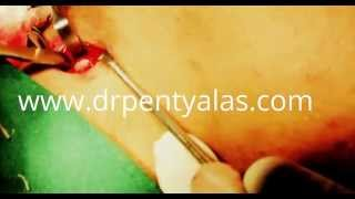 Trachea Shave | Dr Pentyala FFS | Male to Female Thumbnail
