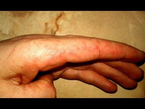 Воспалительные узелки на руках, ногах и других частях тела