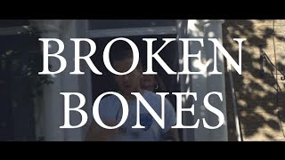 Rob Lynch - Broken Bones (Official Video)