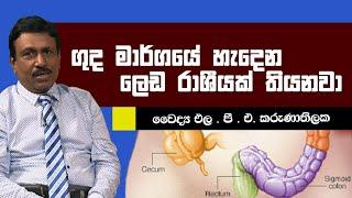 ගුද මාර්ගයේ හැදෙන ලෙඩ රාශියක් තියෙනවා   Piyum Vila   20-05-2019   Siyatha TV Thumbnail