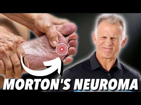 Morton's Neuroma: Absolute Best Treatment (In Our Opinion)