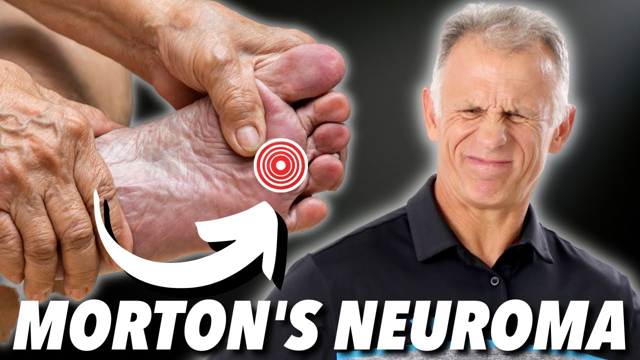 Mortons Neuroma Absolute Best Treatment In Our Opinion Youtube