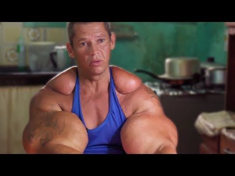 Delusional 'Bodybuilder' Becomes An Alien After Injecting
