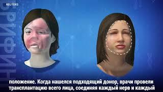 видео В США проведена первая полная пересадка лица