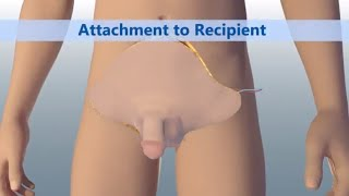 World's First Total Penile and Scrotum Transplant | Johns Hopkins Medicine