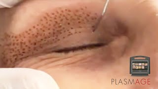 PLASMAGE - Pálpebras superior e inferior (alternativa à blefaroplastia).