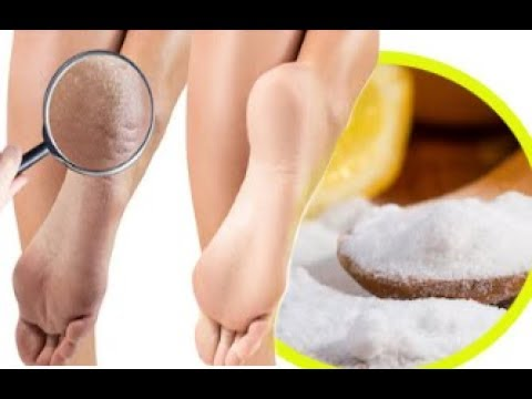 How To Get Silky Smooth Feet With Baking Soda