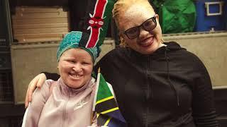 Kilimanjaro Climb Albinism HOUSE