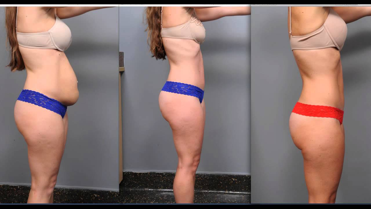 86ce714ac8 Tummy Tuck Recovery
